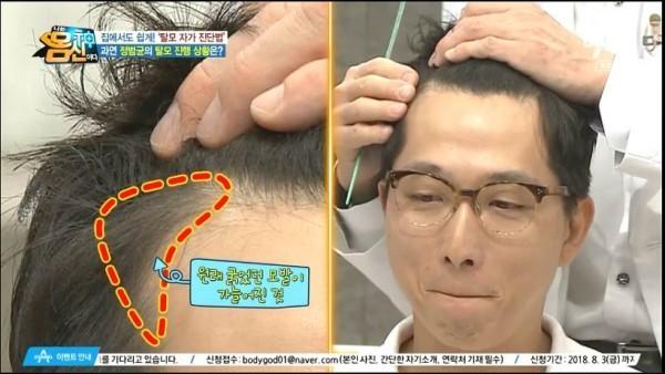 앞머리 선이 M자로 올라가있으며 잔머리가 가늘어짐 (윗머리도 똑같이 가늘어짐)       -탈모 자가진단법은?-