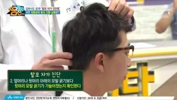 2. 옆머리나 뒷머리 아래의 모발 굵기보다 윗머리 모발 굵기가 가늘어졌는지 확인