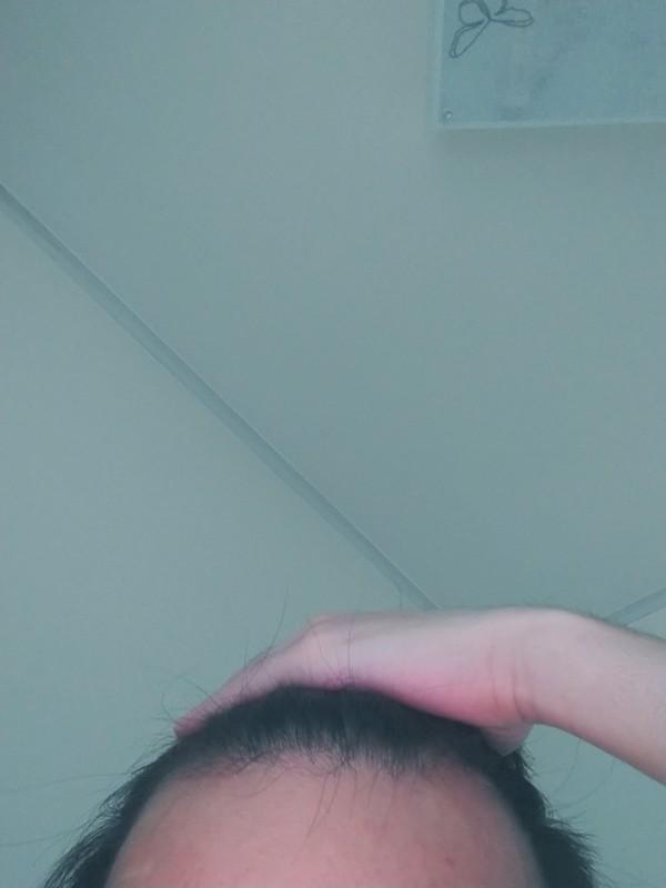 옆머리 앞머리 다 끌어서 올린 머리입니다.