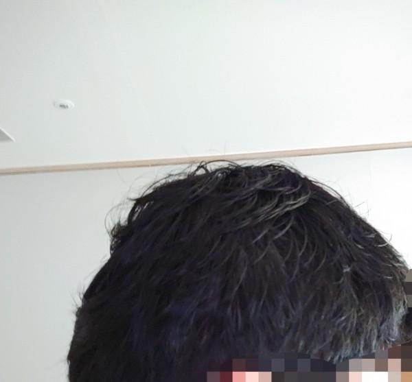구렛나루 윗부분